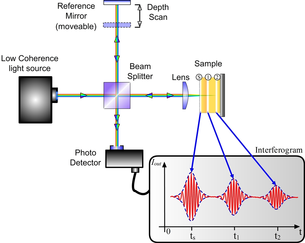 Optical Coherence Tomography Recendt Research Center